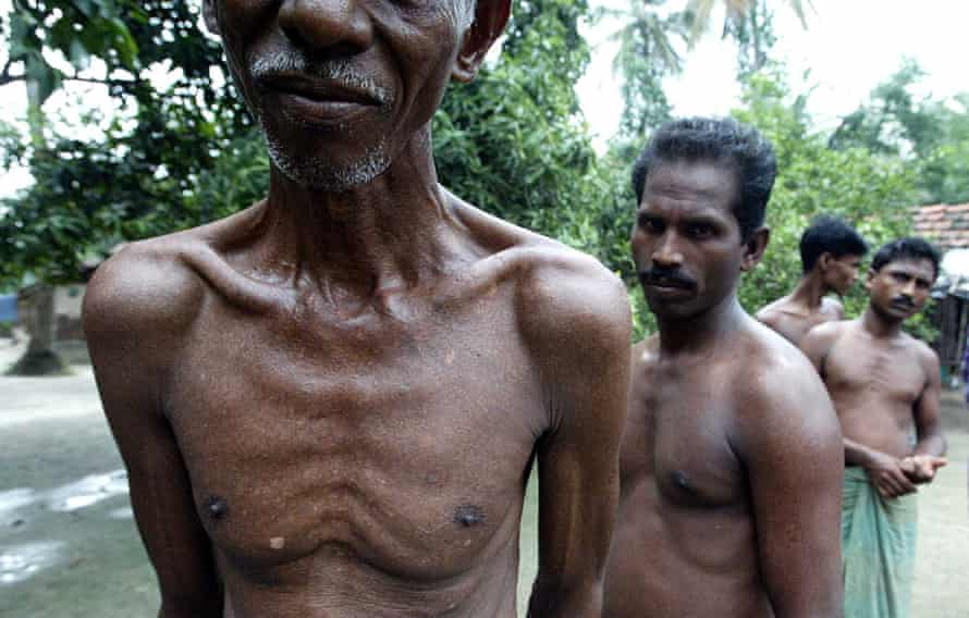 Jay Mondal (front), photographed in 2004 while suffering with a skin problem from arsenic poisoning in Nonaghata Uttrpara village in West Bengal, India.
