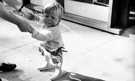A small child affected by thalidomide in 1962.