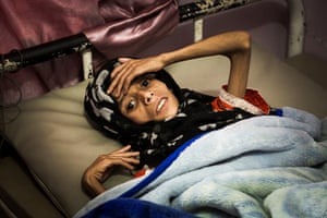 Sadia Ibrahim Mahmud, 11, at the malnutrition ward of the al-Sabeen women and children's hospital.
