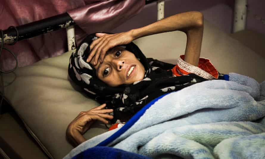 Eleven-year-old Sadia Ibrahim Mahmud, who has since died, in a bed at the malnutrition ward of the al-Sabeen Women and Children's Hospital in Sana'a, on 12 September, 2019