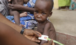 A doctor checks a malnourished child at a camp in Yola.