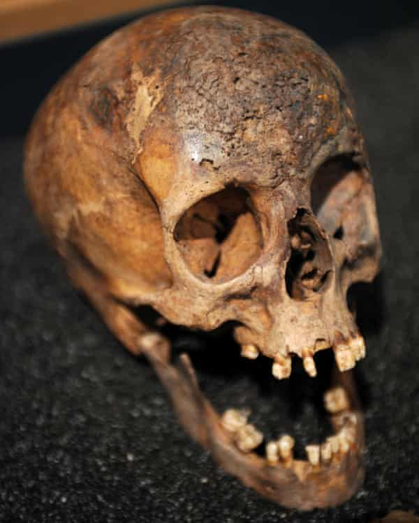 The skull of a prostitute with syphilis.