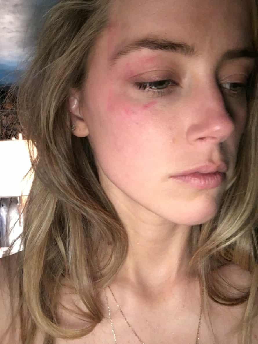 Red weal on Amber Heard's face