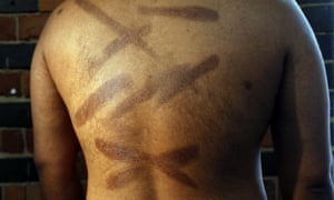 A man shows scars on his back that he claims were inflicted by Sri Lankan security forces