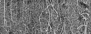 3D vasculature of an adult mouse brain (somatosensory cortex)