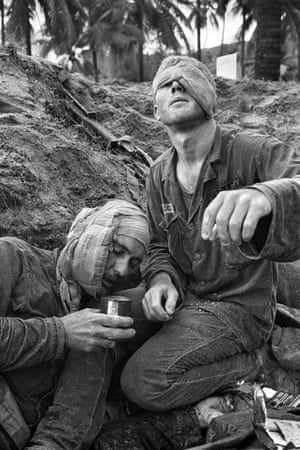 Medic Thomas Cole of Richmond, Virginia, looks up with his one unbandaged eye as he continues to treat wounded S.Sgt. Harrison Pell of Hazleton, Pennsylvania, during a firefight, January 30, 1966