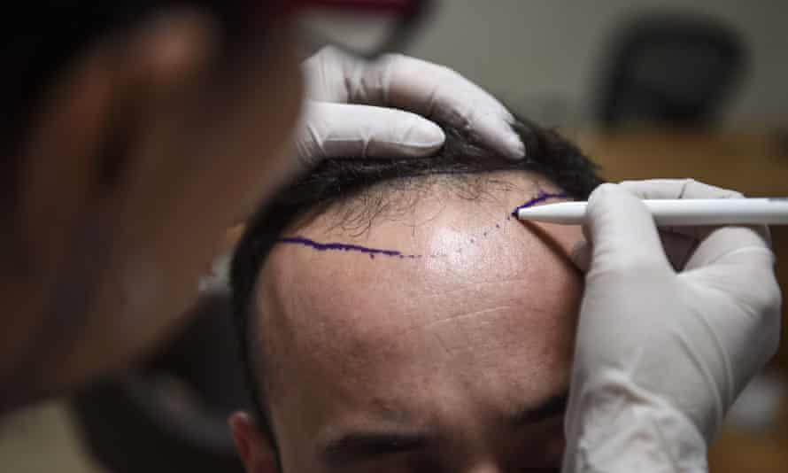 A hair transplant specialist prepares a patient.