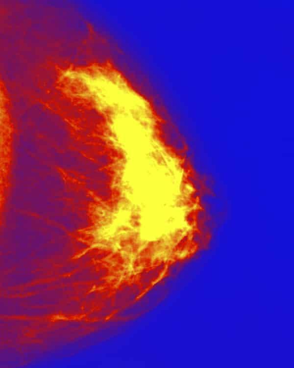 A digitally coloured mammogram