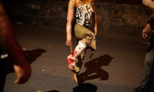 A burned girl shows her injured foot. Human rights groups have condemned Armenia's excessive use of force against the protesters. 'Police used stun grenades, which wounded dozens of demonstrators and some journalists, some severely,' they said.