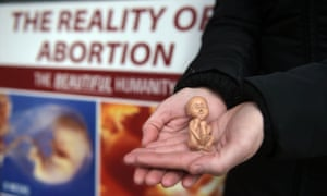 Anti-abortion demonstration outside the Marie Stopes Clinic in Belfast on Thursday.
