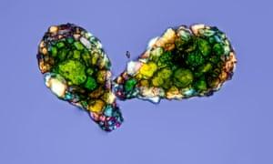 Amoeba Shells by Gerd Guenther, a light micrograph of the empty shells of an amoeba.