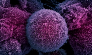 Prostate cancer cells. In most cases, prostate cancers are slow growing, do not cause symptoms and are not life-threatening.