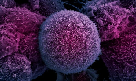 Electron microscope image of prostate cancer cells.