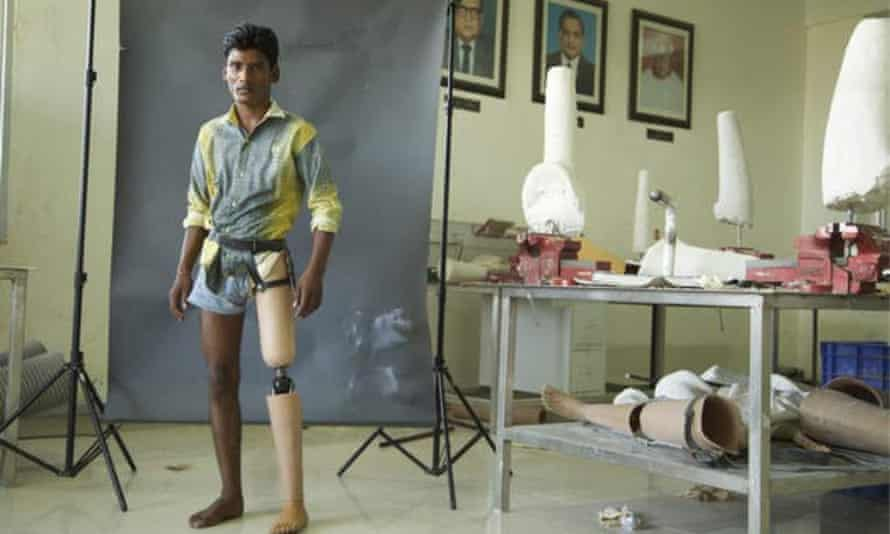 Prakash, a young patient in Jaipur, India, tries out a prosthetic leg with a D-Rev knee joint.