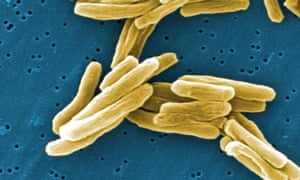 Tuberculosis is an infectious disease caused by bacteria, which is passed on through coughing and sneezing.