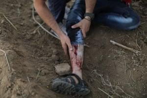 A person shows their bloodied leg