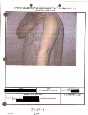 Image depicts detainee's arm injury. No further context was provided.