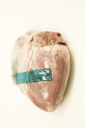 The glues were found not only to stick to pig skin but also cartilage, heart, artery and liver tissues.