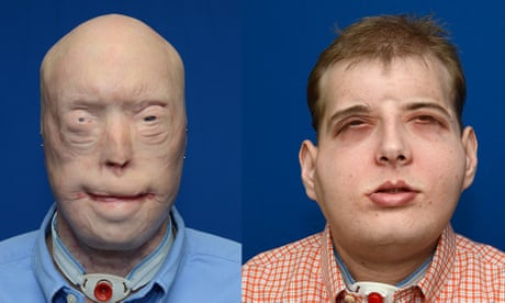 Chimp attack victim who received face transplant sees rejection five