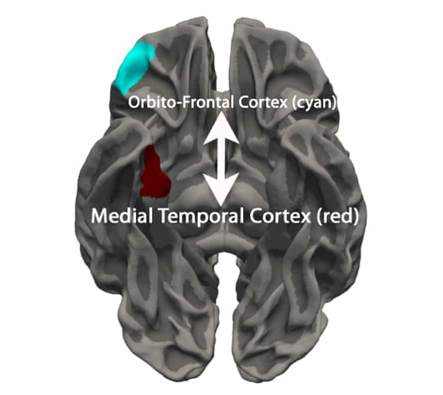 The two highlighted regions of the brain (orbitofrontal cortex and medial temporal cortex) were more similar in terms of thickness in youths with conduct disorder than in typically-developing youths.