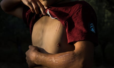 Nadir, aged 14, who has tried to end his life by cutting himself