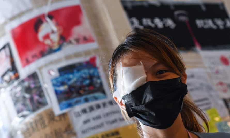 A nurse at an anti-government rally in Hong Kong with one eye covered in tribute to a fellow protester who may lose an eye after being shot with a beanbag round.