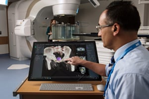 Microsoft Project InnerEye Study of a brain tumour