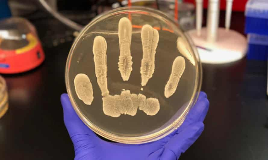 The presence of Staphylococcus epidermidis, pictured, may provide natural protection against skin cancer.