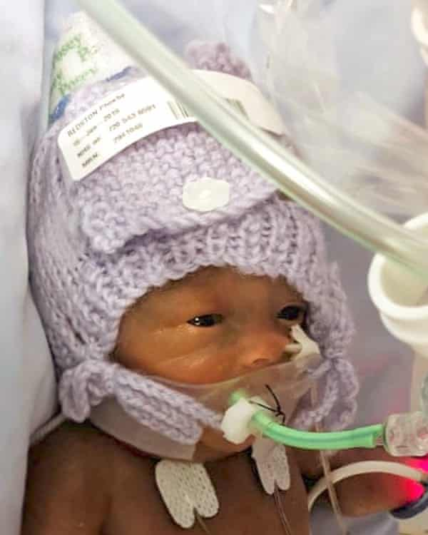 Phoebe was born at 23 weeks, the last week that pregnancy loss is classified as a miscarriage.