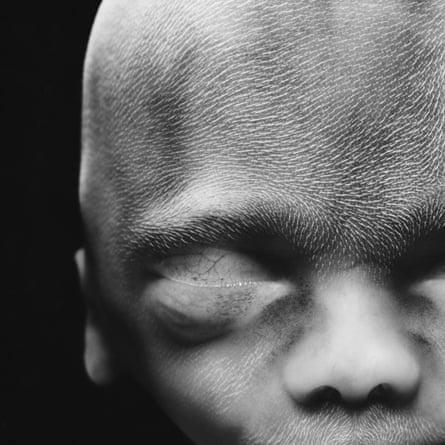 Womb timeline … Foetus 20 Weeks.