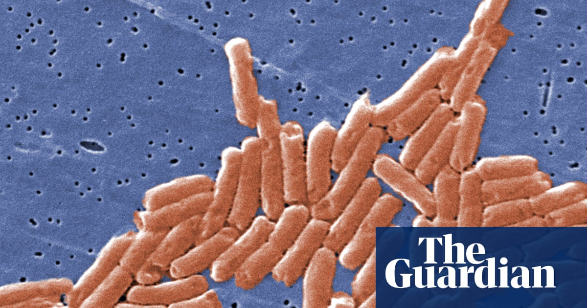 Deadly salmonella outbreak in UK linked to chicken products