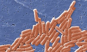 """Salmonella discovery<br>BEST QUALITY AVAILABLE Undated handout file photo issued by the Centers for Disease Control and Prevention of the Salmonella bacteria, which can act as a """"Trojan horse"""" to help the immune system fight cancer, scientists have discovered. PRESS ASSOCIATION Photo. Issue date: Saturday February 18, 2017. The salmonella bacteria can infiltrate tumours and flag the cancer cells up to the body's immune defences, making them a target for attack. See PA story HEALTH Salmonella. Photo credit should read: Janice Haney Carr/Centers for Disease Control and Prevention/PA WireNOTE TO EDITORS: This handout photo may only be used in for editorial reporting purposes for the contemporaneous illustration of events, things or the people in the image or facts mentioned in the caption. Reuse of the picture may require further permission from the copyright holder."""