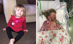 Faye Burdett   before and after she contracted meningitis.