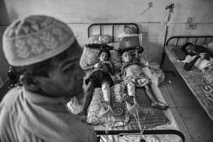 Two Rohingya refugee boys who had their legs broken by the Myanmar army share a bed in the Rohingya ward at Sader hospital in Cox's Bazar