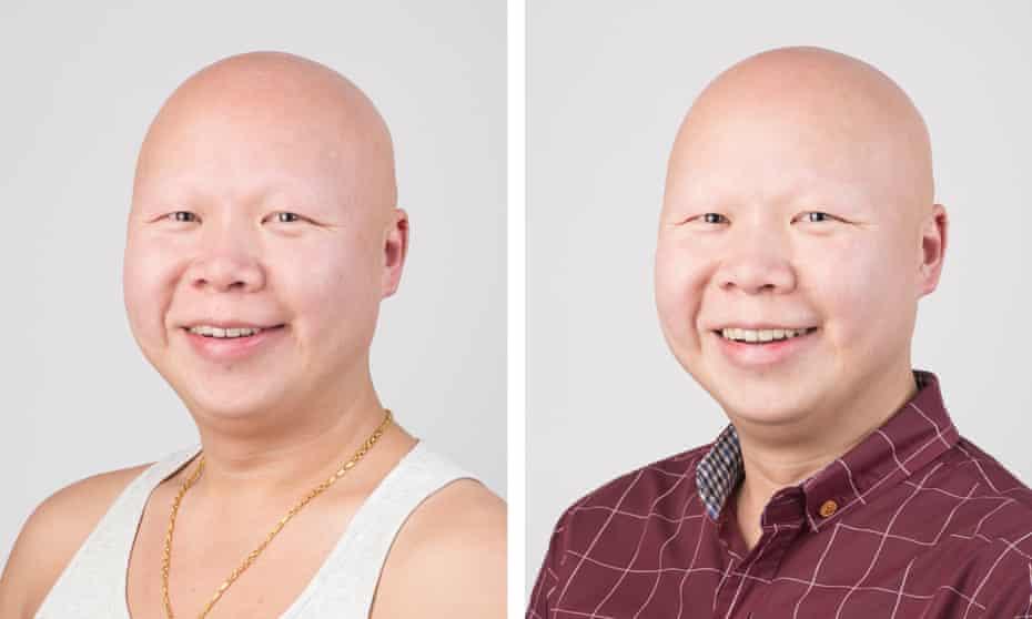 Raymond Shek for Alopecia UK