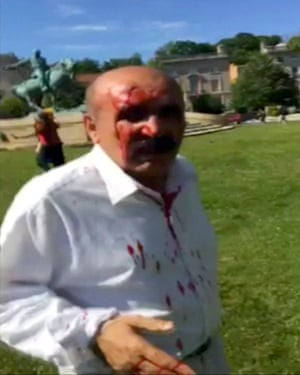 A man is seen bloodied from head wounds outside the Turkish ambassador's residence in Washington.