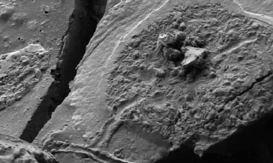 brain cells from Vesuvius