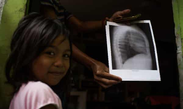 Five-year-old Shantal has been diagnosed with pneumonia three times, something her community blames on the fact she lives less than 100 meters from a plastics recycling plant in Canumay West village.