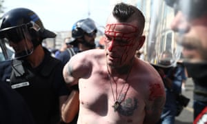 An injured England fan is arrested after clashes in Marseille