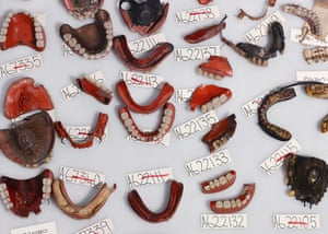 Hippo mouth … a group of full and partial dentures now held in storage at Blythe House, London. Some dentures were made of hippopotamus ivory, cut and carved to look like teeth. Ivory was expensive, difficult to clean and would deteriorate over time, smelling quite unpleasant.