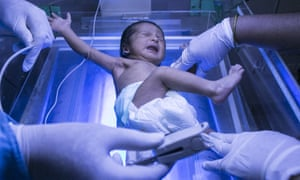 A newborn baby is examined in a hospital in India.