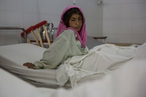A patient in a hopsital in Lashkargar, Helmand, after their houses in Gereshk were hit by a drone.