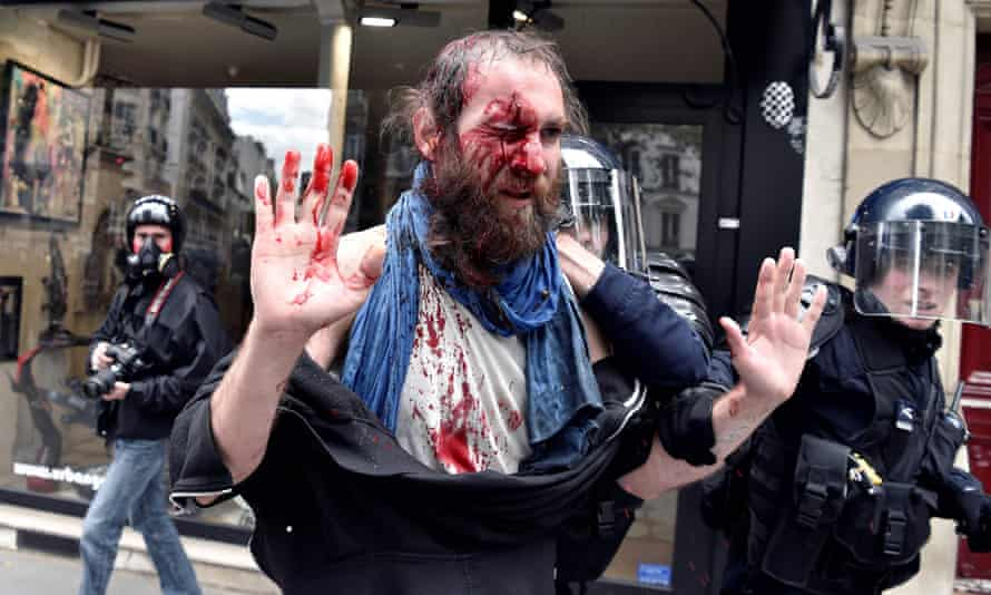 An injured protester is led away by riot police in Paris on Tuesday.