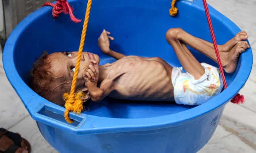 Starving child Bassem Mohamed Hassan