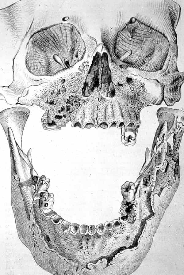A skull with phosphorus poisoning in the jaw, the result of 19th-century employment in a match factory.