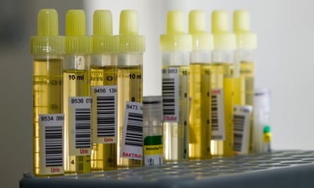 Researchers have developed a urine test for early-stage pancreatic cancer.