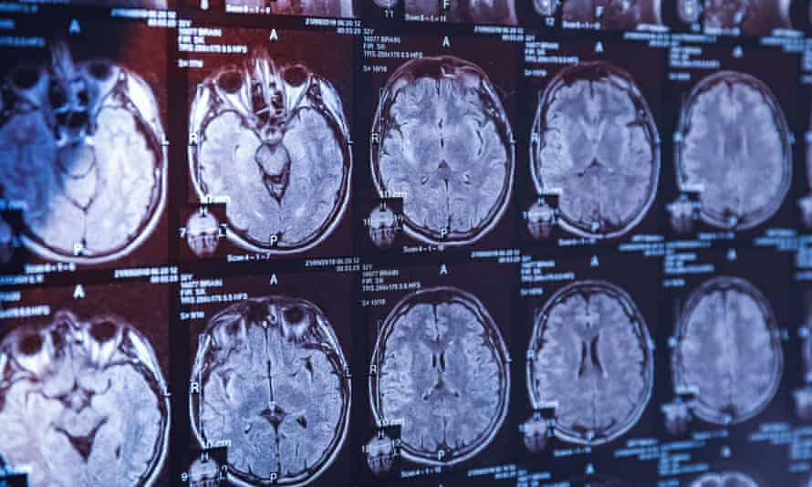 An investigation into the science linking brain injury to dementia has been promised.