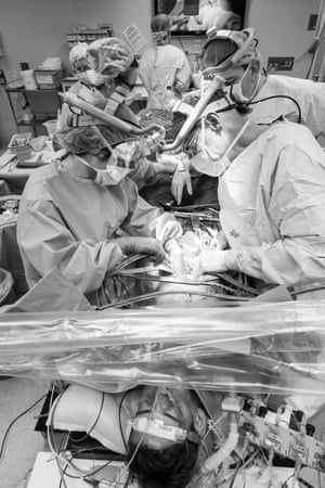 Midway through the liver transplant, surgeons and theatre staff keep a close watch on the progress of the surgery