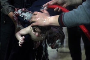 A child is treated in a hospital in Douma, eastern Ghouta, after what a Syria medical relief group claims was a suspected chemical attack.