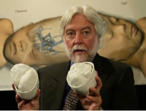 Dr. James Goodrich demonstrating separation of conjoined twins.